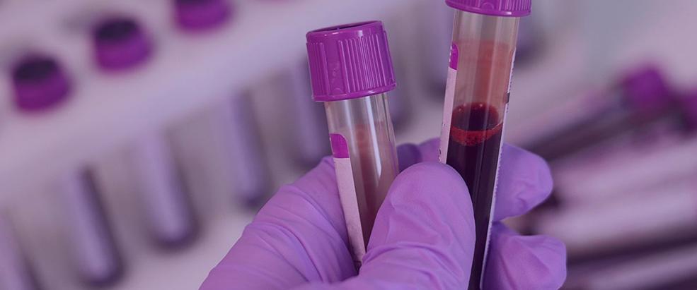 Profissional analisando amostra de sangue